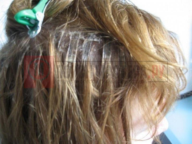 Выпадение волос лечение народными рецептами
